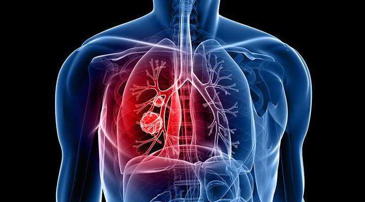 Первый препарат компании «Рош» для лечения злокачественных новообразований вне зависимости от их локализации одобрен в Европе для применения у пациентов с солидными опухолями с транслокациями NTRK и пациентов с ROS1-положительным метастатическим немелкокл